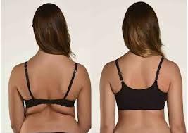 Contoh gmbr lemak di bahagian belakang badan..