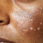 Hypo-pigmentation