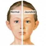 Perbezaan kulit normal dengan kulit jaundice