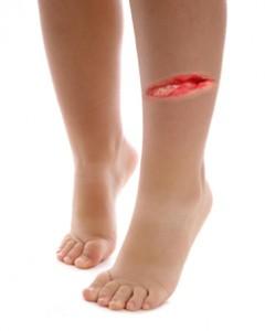Contoh luka di kaki arwah Ani.. Malah lebih teruk drpd ni..